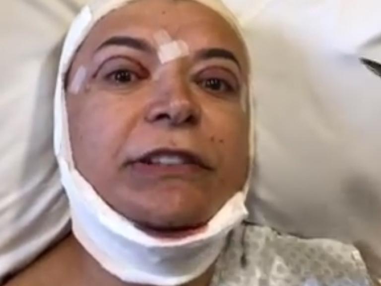 David Brazil tranquiliza fãs após cirurgia