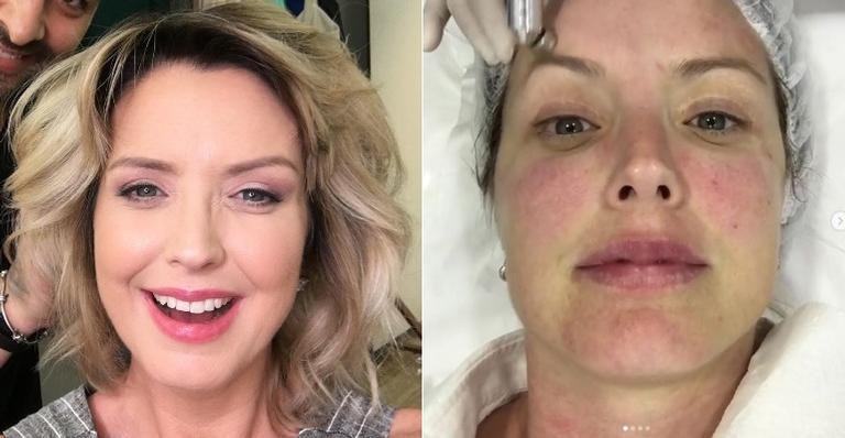 Aos 42 anos, Alessandra Scatena conta como faz para para manter a pele tonificada com o tratamento feito pela Dra. Poliane Cardoso