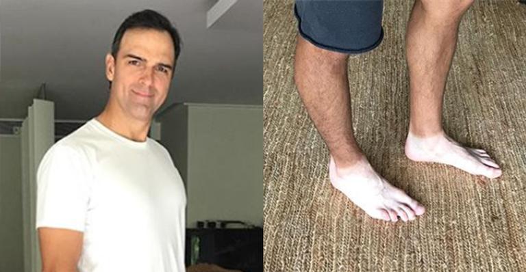 Apresentador do Fantástico explicou a cor de seus pés após insistência dos fãs